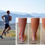 runner pronazione fisioterapia stile di corsa