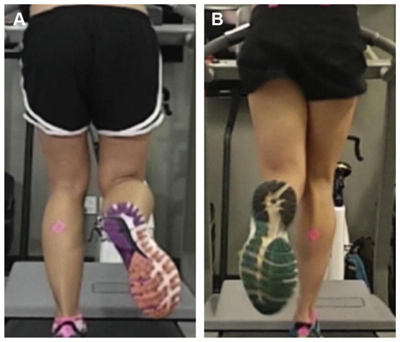 fisioterapia-analisi-biomeccanica-video-corsa (1)